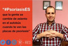 @jayusomolina  Jorge comparte su foto para #PsoriasisEs. #Psoriasis #ArtritisPsoriásica #Piel #Skin