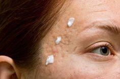 El bicarbonato de sodio es uno de los remedios caseros más baratos que se pueden utilizar para deshacerse del acné y las espinillas.