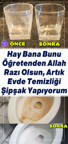 Life Hacks, Turkish Kitchen, Need To Lose Weight, Olay, Baby Knitting Patterns, Easy Weight Loss, Survival Skills, Clean House, Tricks