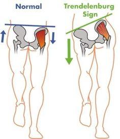 Leg Pain: 3 Steps to Eliminating Tensor Fasciae Latae Pain & Tightness. Hip Strengthening Exercises, Knee Exercises, Back Pain Exercises, Hip Replacement Exercises, Yoga Fitness, Health Fitness, Best Exercise For Hips, Tensor Fasciae Latae, Gluteus Medius