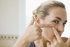 Should your pop your pimples? Learn what really happens when you pop or squeeze your pimples, and get some better ways to get rid of breakouts. REALLY GOOD READ #PimplesOnChin #PimplesOnForehead White Pimples On Face, Pimples On Forehead, Types Of Acne, Face Mapping, Acne Causes, Body Organs, Acne Treatment, Winter White, Skin Care Tips