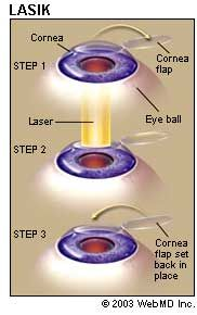 LASIK Eye Surgery Here are the benefits and potential risks of Lasik surgery from Web MD. Only a practiced ophthalmologist can determine how Lasik eye surgery will benefit you. Luckily, I am a practiced ophthalmologist. Visit my web page at to learn Plastic Surgery Photos, Celebrity Plastic Surgery, Toenail Fungus Treatment, Prescription Eye Drops, Laser Vision Correction, Lasik Eye Surgery, Parts Of The Eye, Eyes, Recovery