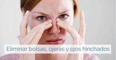 Remedios contra bolsas, ojeras y ojos hinchados