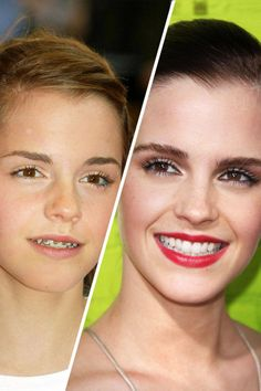 Emma Watson from Harry Potter before and after. Look at her perfect smile! Emma Watson from Harry Potter before and after. Look at her perfect smile! Emma Watson, Braces Smile, Teeth Braces, Braces Humor, Dental Braces, Perfect Teeth, Perfect Smile, Beautiful Smile, Celebrities With Braces
