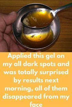 Applied this gel on my all dark spots and was totally surprised by results next morning, all of them disappeared from my face Today I am going to share one remedy that is natural and the combination of some unique ingredient that can remove dark spot Dark Spots Under Eyes, Dark Spots On Face, Dark Circles Under Eyes, Dark Marks On Face, Beauty Secrets, Beauty Hacks, Beauty Tips, Belleza Diy, Dark Circle Remedies