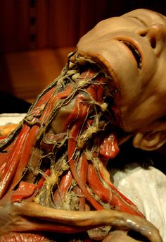 Lymphatic system. 19th-century wax anatomical model showing lymph nodes of the neck by the French studio of Vasseur & Tramond, Mütter Museum of the College of Physicians of Philadelphia