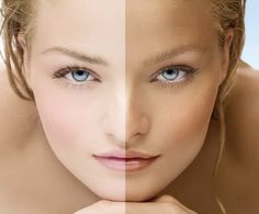 Homemade Remedies To Remove Tan. I have tried two of these and it really work wonders.