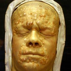 Європейці привезли в Америку багато хвороб. А яку хворобу привезли з Америки в Європу? сифіліс! Сифіліс був в Америці до приходу європейців. Швидше за все він був перевезений в Європу членами екіпажу Кристофора Колумба. Перший спалах сифілісу стався в Неаполі в 1494 році під час навали французьких військ.