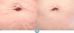 Real Results Gallery | Nerium Real Results | Nerium Intl. Nerium International, Gallery, Real People