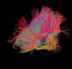 It looks like art, but its Neuroscience. White matter fiber architecture of the brain. Measured from diffusion spectral imaging (DSI). The fibers are color-coded by direction: red = left-right, green = anterior-posterior, blue = through brain stem. Martinos Center for Biomedical Imaging, Randy Buckner, PhD and the Laboratory of Neuro Imaging. --- Human connectome project