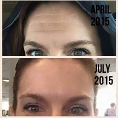 Roll away those forehead creases! Bye-bye wrinkles!  Rodan and Fields Redefine w/ Amp MD Roller.