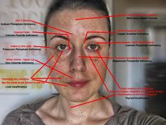 A facial analysis will determine your biochemical imbalances. (aka it will determine what trace mineral are deficient in the cells of your body)  Tissue salt formulas will balance out these deficiencies over time.