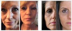 Our Ageless is an AMAZING product!! You can see a difference even in the first application!! Try it today!!! DebsLife.SkinnyBodyCare.com
