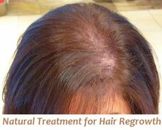 Natural Treatment for Hair Regrowth
