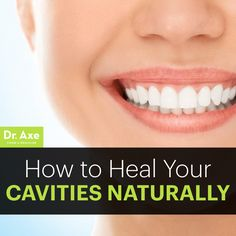 How to heal your cavities naturally  http://www.draxe.com #health #holistic #natural