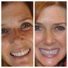 How to get rid of freckles!! With this Rodan and Fields REVERSE regimen you can lighten freckles and dark marks and prevent future sun damage. BEST freckle treatment.