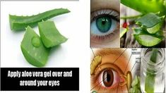 Improve Your Eye Health with This Natural Aloe Vera Remedy:Say God-by to glasses Forever Living Company, Forever Living Products, Forever Living Aloe Vera, Natural Aloe Vera, Healthy Eyes, Cleansing Gel, Aloe Vera Gel, Natural Remedies, Improve Yourself