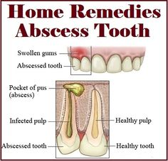 Home Remedies For Tooth Infection In Dogs