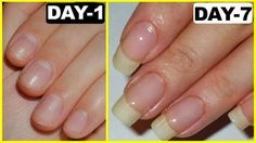 Super fast way to grow nails – GUARANTEED RESULTS   We all love to have long nails but sometimes the wait is too long so in this post, I have shared a very simple home remedy that will Grow your nails faster, naturally and you'll see amazing results in just 7 days. This is a nail growths serum that you have to apply on your nails .....