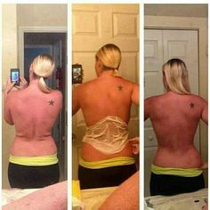 BEFORE & AFTER Questions mommawraps@gmail.com or www.mommawraps.com #mommawraps #beforeafter #nofilter #health #weightloss #skinny #healthy #lookgood #results #nongmo #sahm #momlife #workfromhome #debtfree #backfat #flab