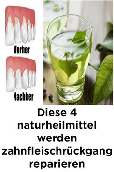 These 4 natural remedies will repair gingival retreat Source by Health Articles, Health Tips, Health And Wellness, Health And Beauty, Quick Weight Loss Tips, Detox Drinks, Alternative Medicine, Beauty Secrets, Beauty Tricks