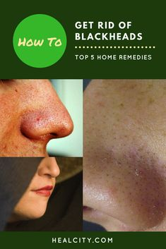 How to get rid of blackheads quickly and easily? Homemade remedies can treat your blackheads naturally. Try them out for a flawless and nourishing skin.