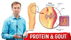 In this video, I talk about dietary proteins and gout. Palmer College Of Chiropractic, Doctor Of Chiropractic, Dr Eric Berg, Dr Berg, Health And Wellness Center, Health And Nutrition, Allergy Remedies, Herbal Remedies, Natural Remedies