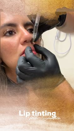 In reality, medical lasers have been used to get rid of dark spots, acne scars, other kinds of skin blemishes and even tattoos. Cheek Fillers, Facial Fillers, Botox Fillers, Dermal Fillers, Botox Injection Sites, Botox Injections, Cosmetic Treatments, Skin Care Treatments, Hyaluronic Acid Fillers