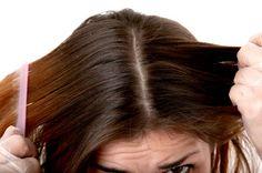 Aqui varios consejos muy interesantes para controlar la grasa en el cabello.Las hierbas que ayudan:hierbabuena,te verde,salvia y limon.