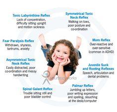 Retained Neonatal (Primitive) Reflexes