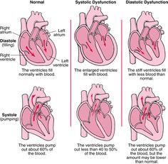 Heart Failure: systolic vs. diastolic dysfunction
