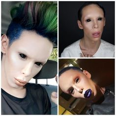 Spent $50,000 to get a such look? Wow..worst plastic surgeries ever!!!  #plasticsurgery #worstplasticsurgery #badplasticsurgery #horribleplasticsurgery #plasticsurgeryfails