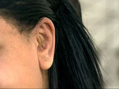 G1 - Projeto oferece desconto em cirurgia para correção de 'orelha de abano' - notícias em São Paulo