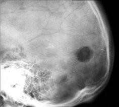 Eosinophilic granuloma | Radiology Case | Radiopaedia.org