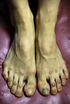ballerina's feet. I've wondered....