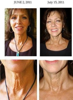 rodan and fields before and after photos for wrinkles fine lines and sagging