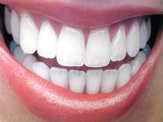 A cosmetic dentistry guide to the latest smile-enhancing treatments and trends