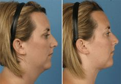A mini neck lift will do wonders! http://skintighteningsage.com/mini-face-lift-a-quick-and-convenient-beauty-hack/
