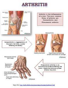 My arthritis report