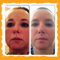 My personal results using Rodan+Fields Reverse. saying goodbye to sun damage better known as freckles.