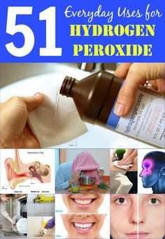 51 Extraordinary Everyday Uses for Hydrogen Peroxide Categorized household, health, cleaning uses with descriptions. Cleaning tips, cleaning schedule, green cleaning Diy Cleaners, Cleaners Homemade, Steam Cleaners, Cleaning Solutions, Cleaning Hacks, Cleaning Supplies, Cleaning Schedules, Cleaning Agent, Cleaning Recipes