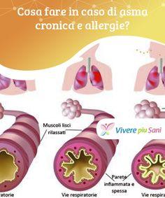 Cosa fare in caso di #asma cronica e allergie?   #Rimedi casalinghi per #combattere asma cronica e #allergie e protegge le proprie vie #respiratorie e godere di migliore salute