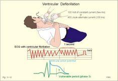Ventricular defibrillation