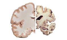 Imagem ilustrativa do cérebro saudável (E) e o atingido pelo mal de Alzheimer, que leva a deterioração da memória e de outras faculdades intelectuais (Max Res / Divulgação )