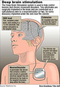 Deep brain stimulation epilepsy fdating