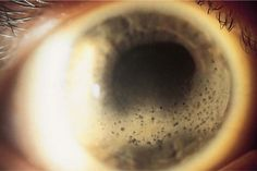 Band keratopathy, a deposition of calcium, is seen as white scalelike deposits present on the anterior corneal surface. The pupil is not round due to the presence of posterior synechiae and adhesions between the iris and lens; a cataract is present.