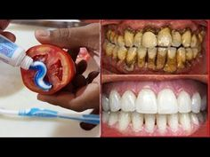 Magical Teeth Whitening Remedy, Toothpaste Tomatoes Mixed Scrub Face Beauty Tips 2 ways with Toothpaste and Tomatoes Toothpaste Tomatoes Mixed Scrub Face Beauty Tips, Glowing Skin Whitening Naturally To Get Fairness Magical Teeth Whitenin. Beauty Tips For Face, Beauty Hacks, Face Beauty, Beauty Tutorials, Diy Beauty, Beauty Tips Youtube, Ugly Hair, Teeth Whitening Remedies, How To Grow Eyebrows