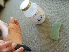Gua Sha Massage on Foot