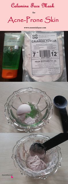 Using calamine lotion for acne is more cost effective than my previous acne treatments. This calamine clay face mask provides way more benefits for my skin than any other spot treatment or acne cream Ive used! Clay for prone Skin Clay Face Mask, Acne Face Mask, Face Face, Skin Mask, Diy Masque, Skin Care Routine For 20s, Acne Cream, Clay Faces, Wie Macht Man