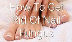 How to get rid of nail fungus the natural DIY way!